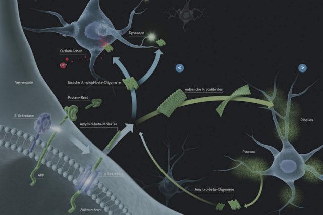 Die Bildung und Aggregation des Amyloid-beta-Proteins ist ein komplexer Prozess. Copyright: Illuteam43